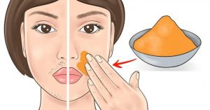 Read more about the article Get Rid of Facial Hair With These Natural Remedies