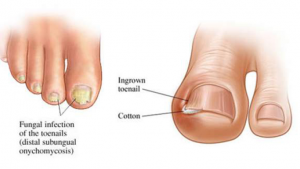 Read more about the article How to Get Rid of Toenail Fungus Using Just 3 Simple Home Remedies