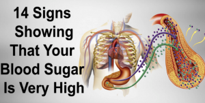 Read more about the article 14 Symptoms Of High Blood Sugar And Which Foods Reduce It