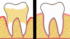 Read more about the article Dentists Explain 7 Habits That Ruin Your Teeth and Gums (And How to Fix It)