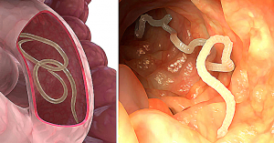 Read more about the article 7 Herbs That Treat Internal Parasites Fast