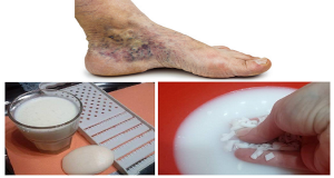 Read more about the article Magical Recipe for Varicose Veins and Thrombosis with Only 2 Simple Ingredients