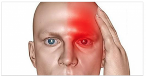 Read more about the article 10 'Eerie' Symptoms Which Indicate That You Had A Silent Stroke And That Another One Will Soon Follow