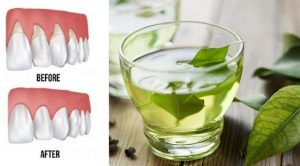 Read more about the article These 4 Natural Remedies Will Repair Receding Gums