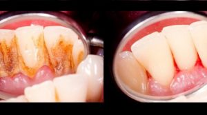 Read more about the article 4 Mixtures That Completely Remove Plaque From Your Teeth
