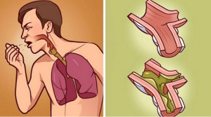 Read more about the article When Your Lungs Drown in Mucus, This is The Best Cure! It's 100% Natural and Works in Just Few hours!