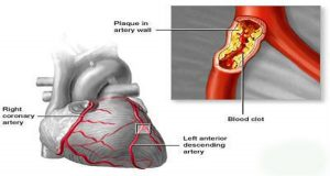 Read more about the article Save Your Heart, Kidneys, and Brain: Clean Your Arteries With These 3 ingredients