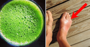 Read more about the article How to Remove Uric Acid Crystallization in Joints for Gout and Joint Pain