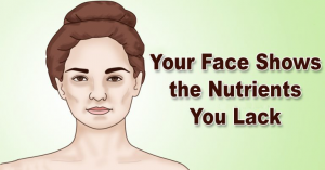 Read more about the article 5 Signs of Nutrient Deficiencies That Are Written All Over Your Face