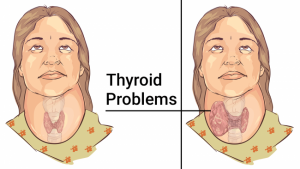 Read more about the article 11 Foods That Significantly Improve Your Thyroid Health and Help You Treat Thyroid Problems